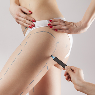 Why liposuction is still a gold standard treatment.