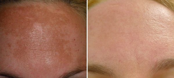 Clinical Peel before and after
