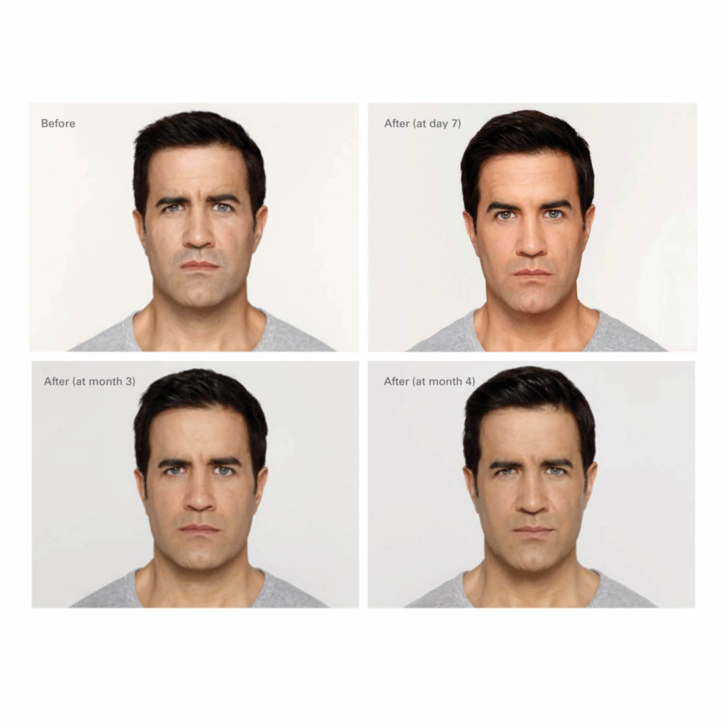 Oakville Plastic Surgery, male botox before and after