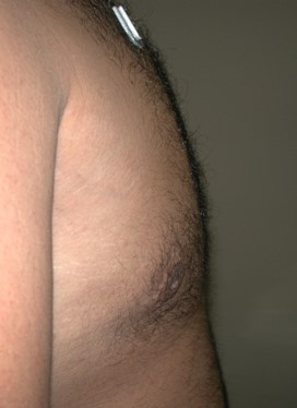 After-Male Breast Reduction