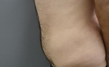 After-Male Tummy Tuck