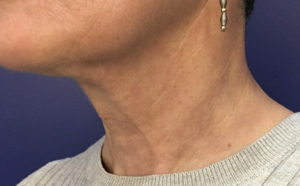 Neck After