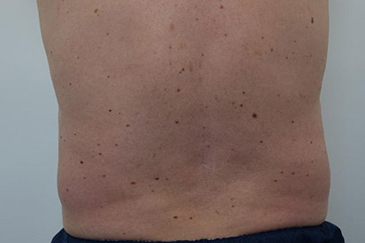 After-Before and 5 months after treatment with Coolsculpting